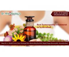 Best Homoeopathy Clinics in Hyderabad