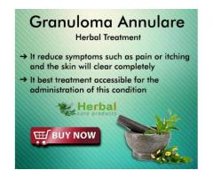 Herbal Products for Granuloma Annulare
